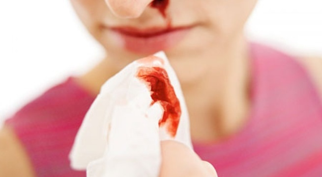 Đoán bệnh mà bạn đang mắc phải qua màu sắc dịch mũi