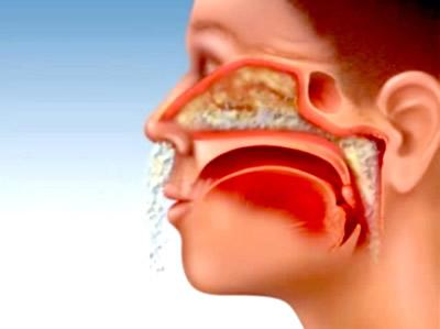 Triệu chứng viêm đa xoang và cách điều trị