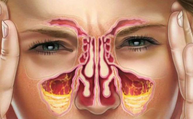 8 cách làm giảm nghẹt mũi tự nhiên ai cũng nên biết