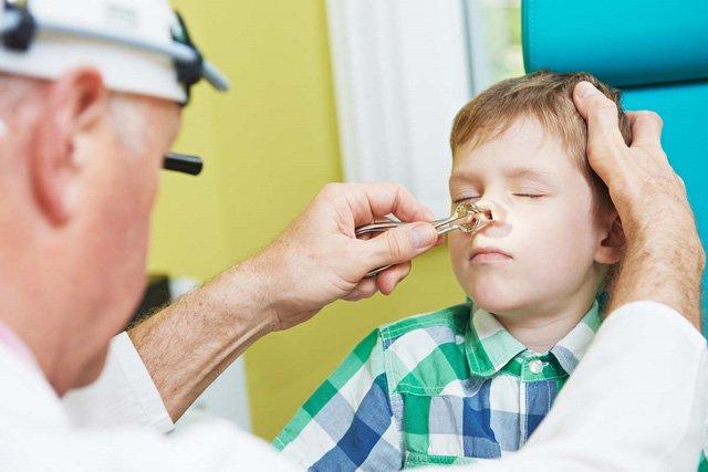 Viêm mũi xoang cấp là gì? Nguy hiểm như thế nào