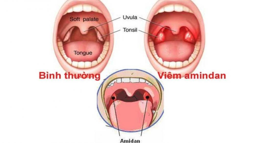 Viêm VA cấp tính và viêm VA mạn tính khác hhau như thế nào?