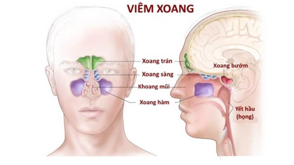 Hỏi: Viêm xoang có ảnh hưởng đến mắt không?