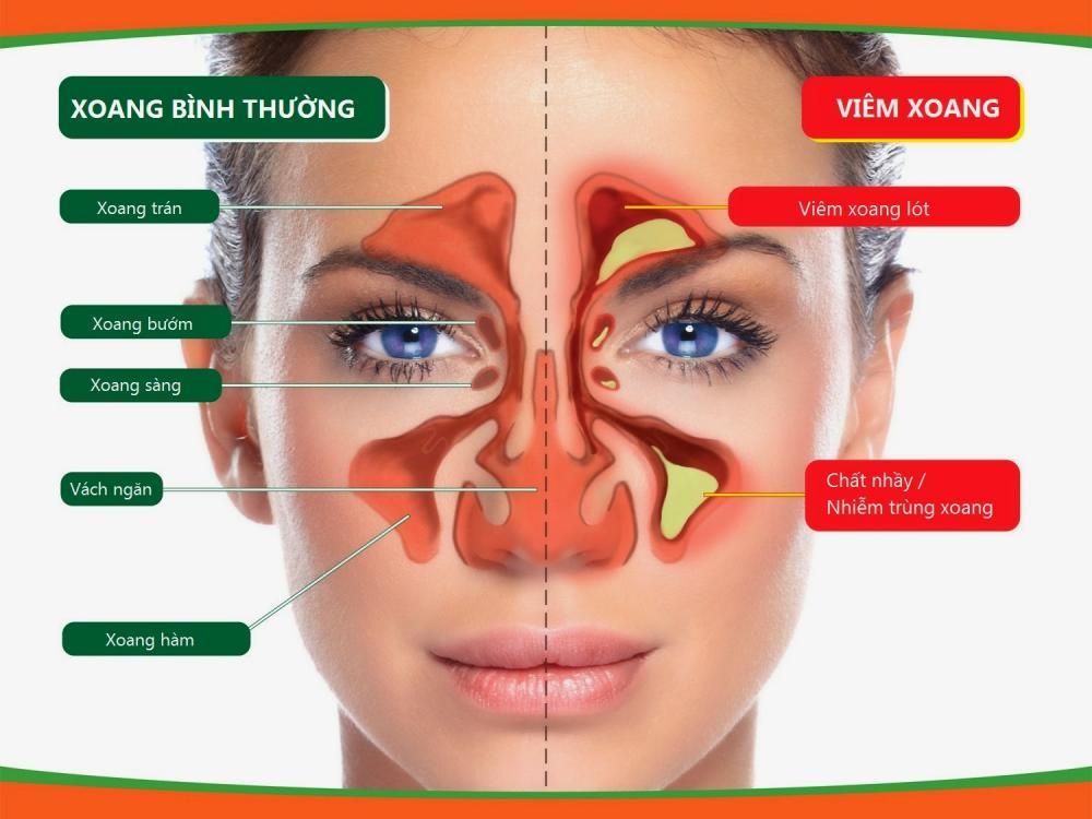Viêm xoang và những ảnh hưởng nguy hiểm đến mắt mà bạn không ngờ